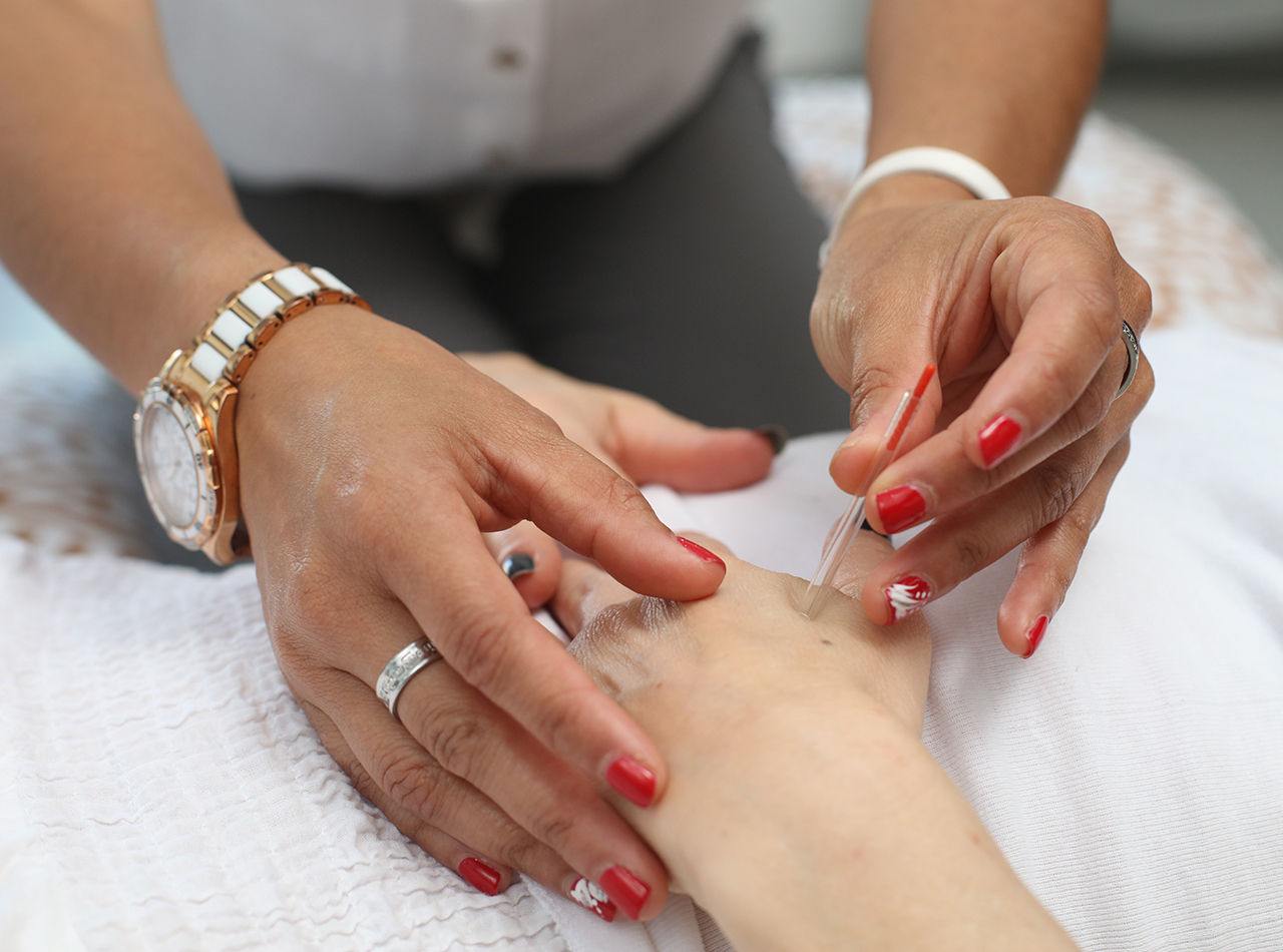 Find Relief from What Ails You with Acupuncture